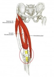 Chondropathia-Patella